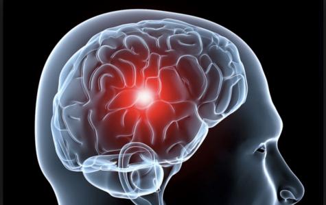 Neurociencia: terapia innovadora